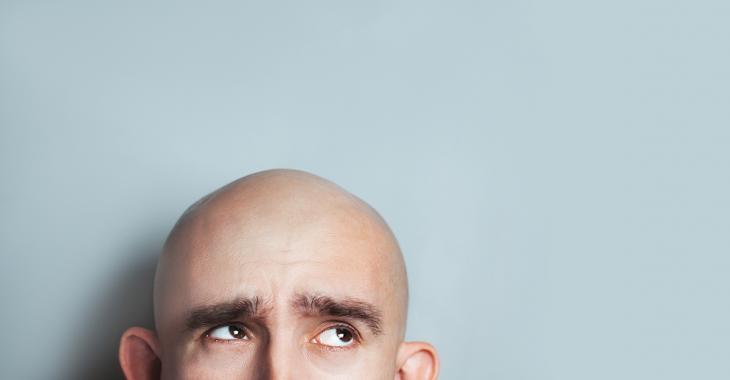 Les hommes chauves pourraient être plus à risque d'être frappés par la COVID-19