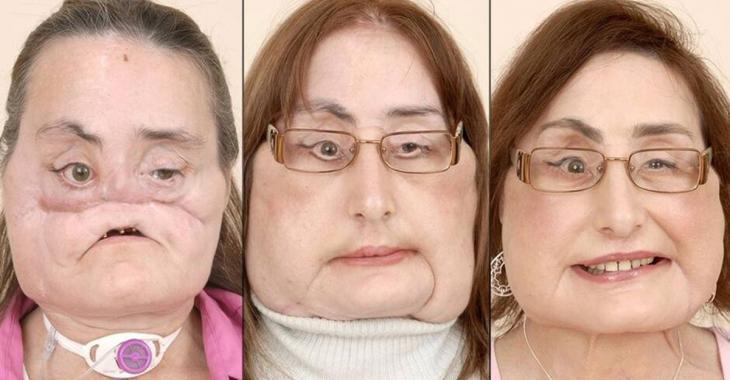 La première Américaine greffée du visage est morte