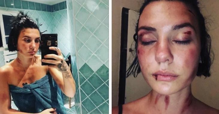 """Une jeune Française violemment tabassée par trois hommes publies une vidéo """"pour ne plus avoir honte"""""""